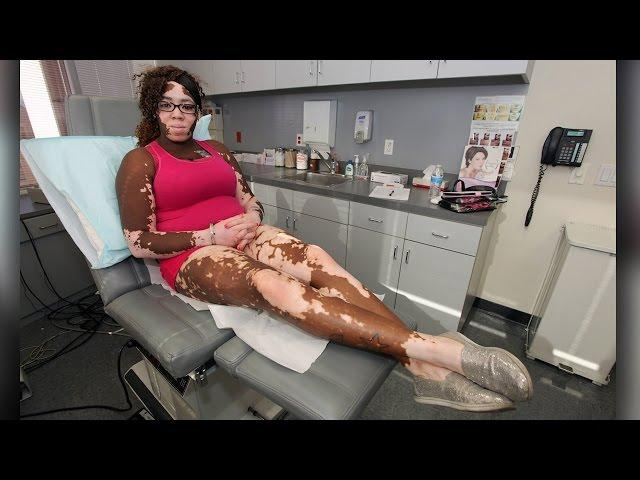 Bullied Because Of My Skin Condition: Body Bizarre Episode 3